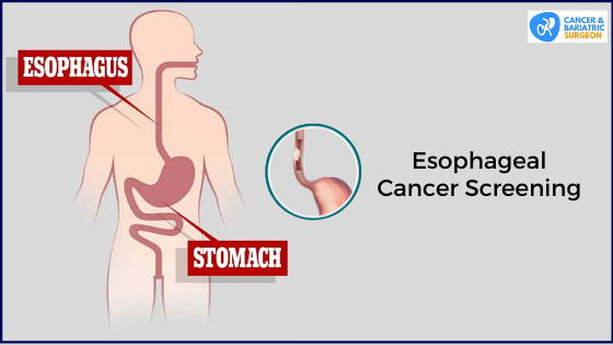 Esophageal Cancer | Best Cancer Surgeon in Bangalore