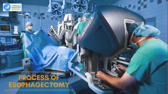 Esophagectomy Procedure