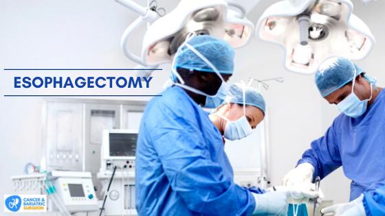 Esophagectomy | Best Surgeon in Bangalore