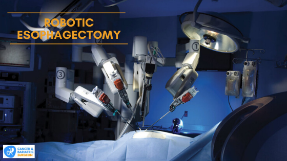 Robotic Esophagectomy Surgery in Bangalore