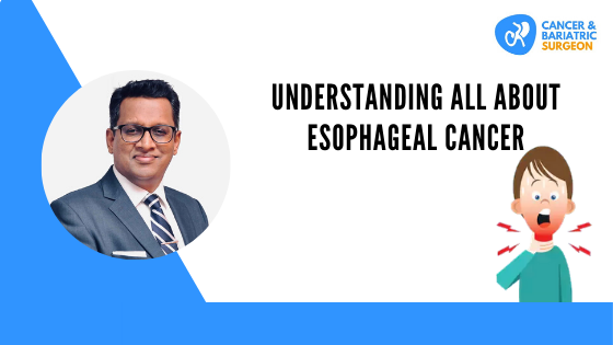 Best Esophageal Cancer Treatment in Bangalore
