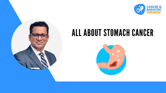 All About Stomach Cancer | Best Cancer Surgeon in Bangalore